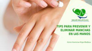 5 Tips para prevenir y eliminar manchas en las manos